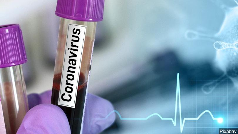 dezurne-ambulante-u-slucaju-corona-virusa